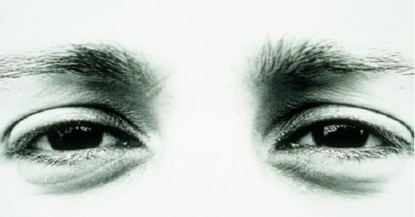 lingkar mata